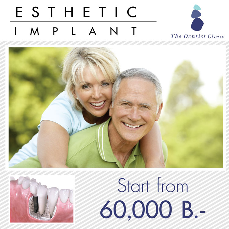 Promotion dental implant